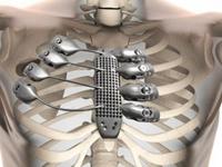 世界首例3D打印肋骨 成功治疗胸壁肉瘤患者