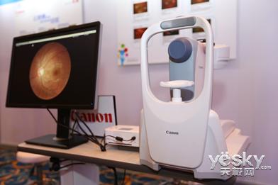 佳能CR-2免散瞳眼底照相机-感受影像精彩 佳能医疗亮相2013佳能博览