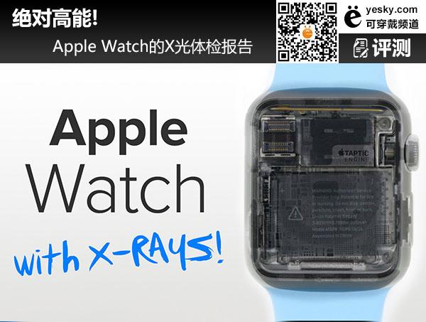 绝对高能! Apple Watch的X光体检报告