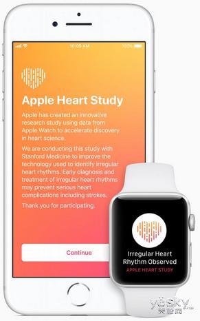 为新品做准备:苹果正式开始收集Apple Watch用户心脏数据